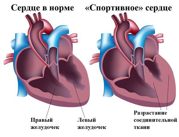 Кардиомимуляторды имплантациялау