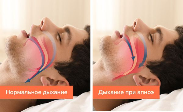 Апноэмен тыныс алу