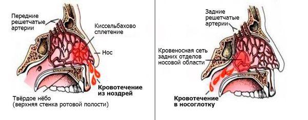 Αιμορραγία μύτης