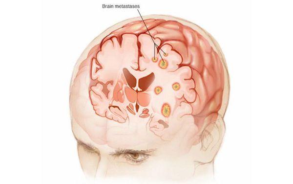Metasztázisok az agyban
