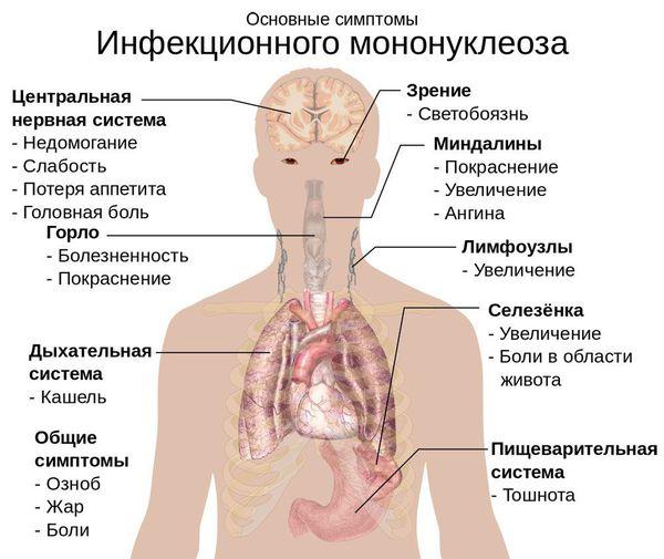 Mga sintomas ng nakakahawang mononucleosis