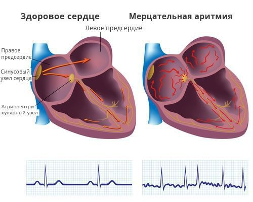 EKG'de desteklenen ekstrüzyonlar