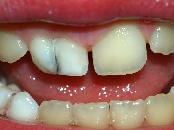 Tanden vergeleken van frequent gebruik van koffie