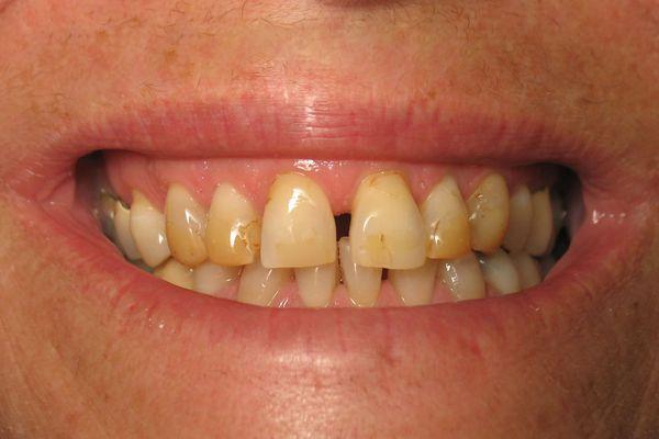 Hoe ontdoen van witte vlekken op de tanden