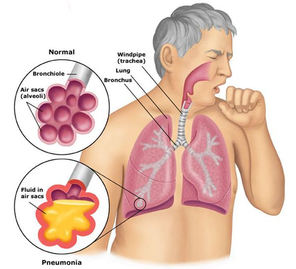 Alveoli é normal e na pneumonia