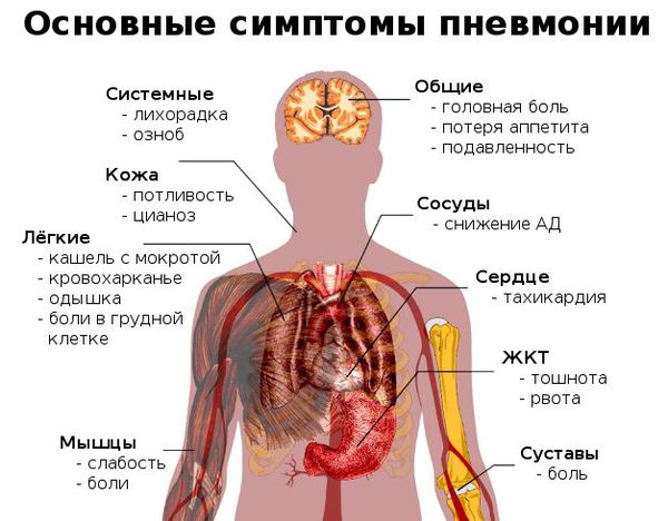 Gejala utama pneumonia