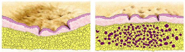 زخم های آتروفیک و هیپرتروفی