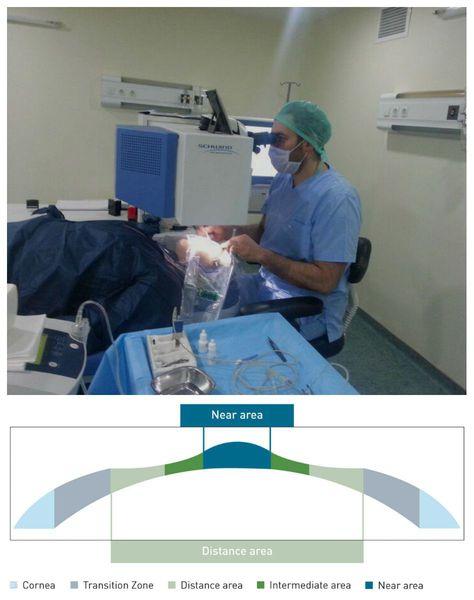 การแก้ไขการมองเห็นด้วยเลเซอร์บนเทคโนโลยี Presbymax