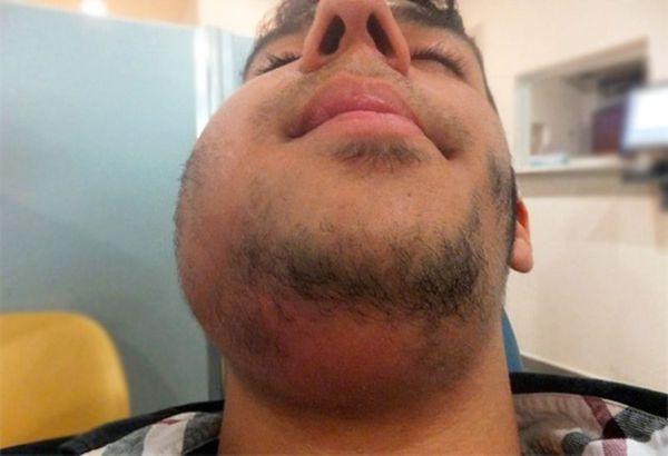 Linfadenitis purulenta crónica