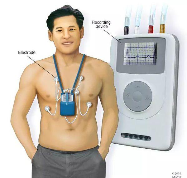 Monitorowanie halter EKG.