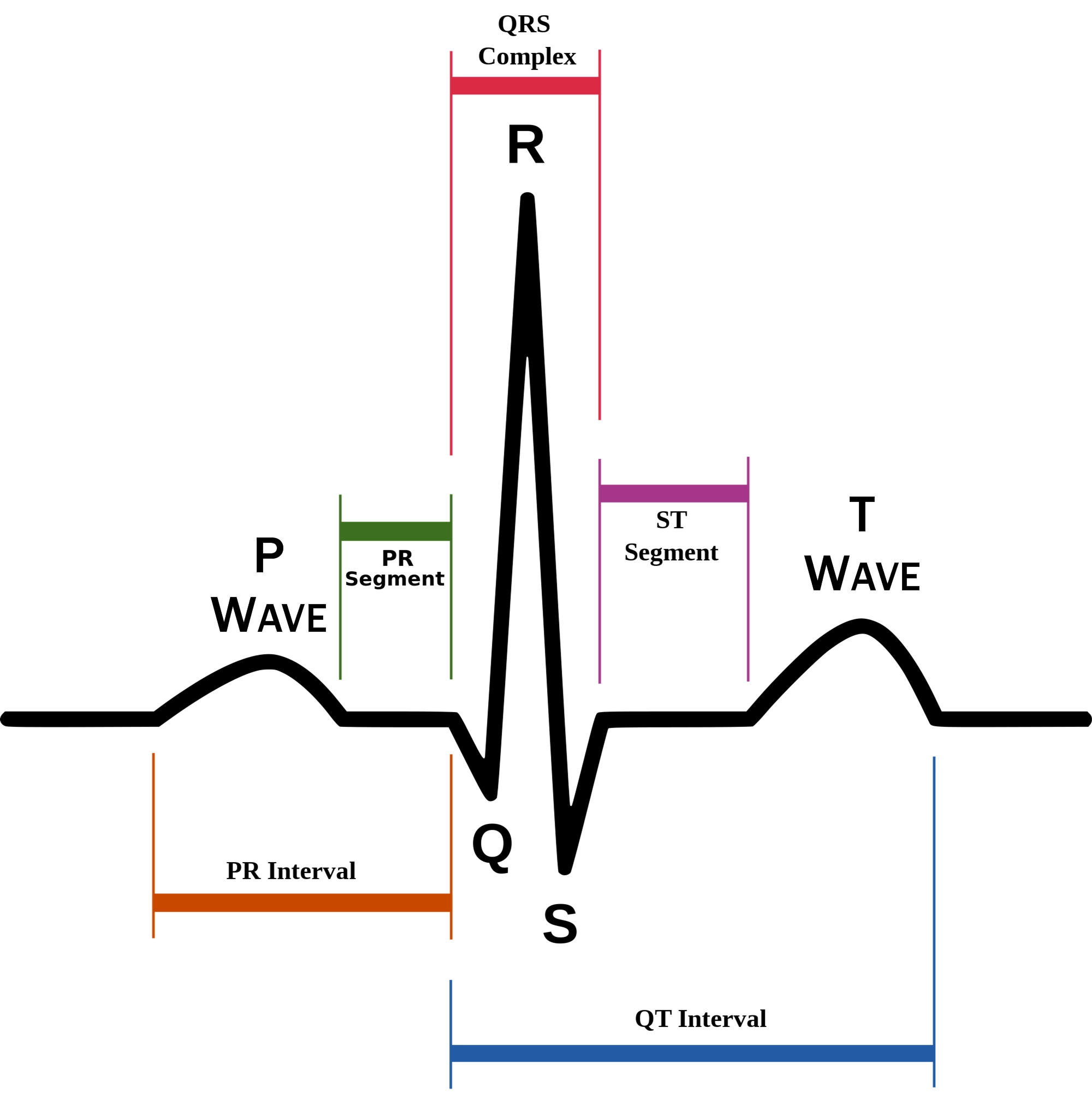 Understanding The Ekg Signal