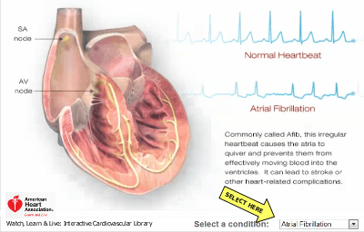 Animations of normal beating heart and a heart in atrial fibrillation, American Heart Association, a-fib, afib, a fib