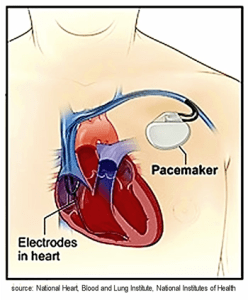 Illustration of Pacemaker for Atrial Fibrillation, A-fib, afib, a fib