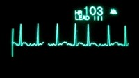 VIDEO: Real-time EKG display of a heart. Test for Atrial Fibrillation, A-Fib, afib,  a fib