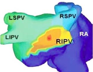 Noninvasive ECGI map