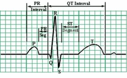 ECG waveform diagram