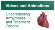 St. Jude Medical - introducing several afib videos