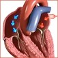 Video frame - Understanding Arrhythmias - CU 150 pix at 96 res