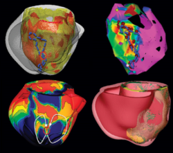 The Virtual Heart Simulation images
