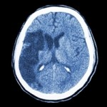 CT Brain scan showing Ischemic Stroke