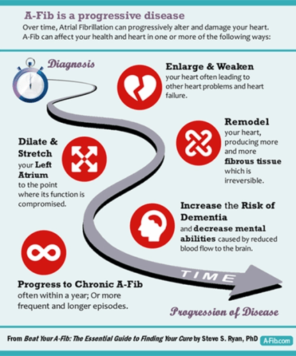 Infographic at A-Fib.com A-Fib is a Progressive Disease