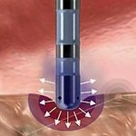 Illustration of RF ablation at A-Fib.com