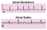 Illustration: Healio 'Atrial Fibrillation ECG Review'