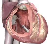 Illustration showing placement of the Medtronic Mica leadless pacemaker