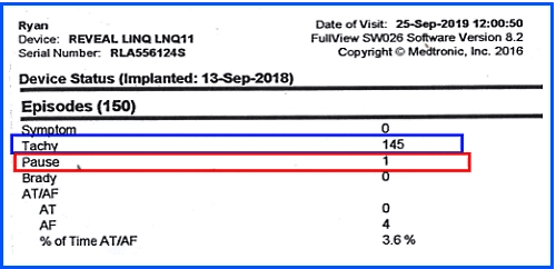 Steve Ryan, A-Fib.com: My implanted LINQ heart monitor report 9-25-19. Note: Tachy and Pause.