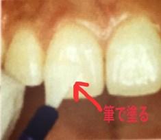 すぐに歯を白くする方法