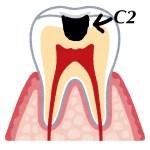 甘いもの(チョコ)や冷たい水や風で歯がしみる症状は虫歯!原因と3つの治療方法