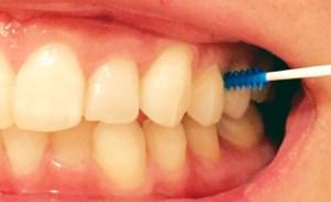 歯間ブラシの使い方手順