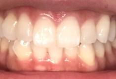歯が白くなる歯磨き粉の効果