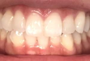 歯磨き粉で白い歯になる方法