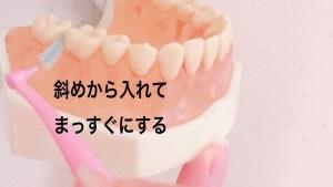 奥歯に歯間ブラシをつかう時の注意点