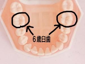 6歳臼歯シーラント