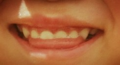 舌を出す癖で歯並びが悪くなる