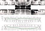 歯のレントゲン.jpg