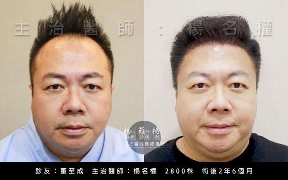 董哥董至成ARTAS系統植髮後術前術後對比圖
