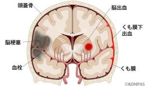 脳卒中分類