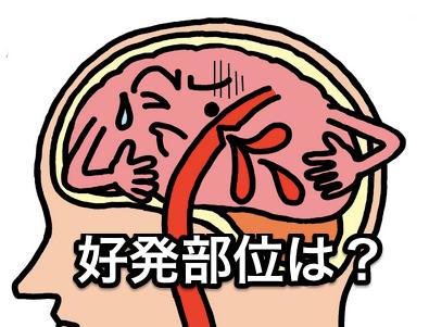 脳出血好発部位