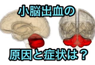 小脳出血原因症状
