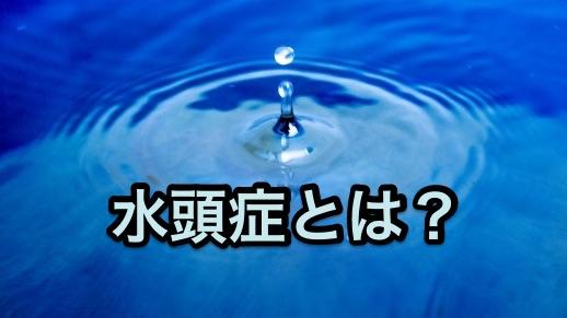 SAH水頭症