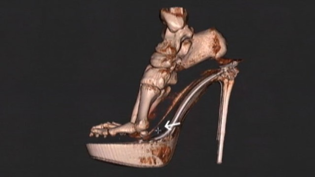 X Ray Do High What Heels