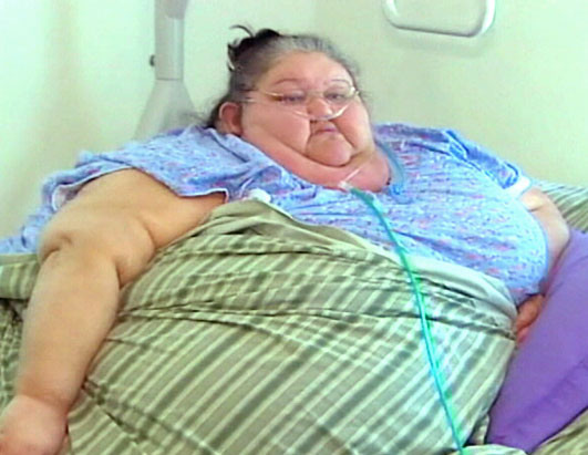 https://i2.wp.com/a.abcnews.com/images/Health/abc_obese_woman_080924_ssh.jpg