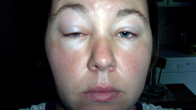 Woman Suffers From Life Threatening Allergy To Exercise
