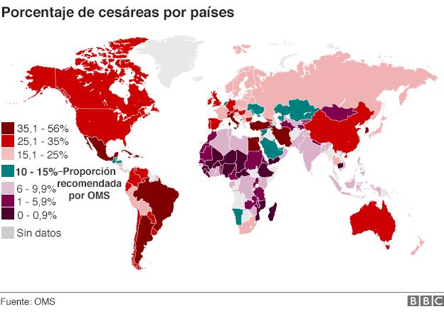 En América Latina la práctica de la cesárea está excesivamente extendida.