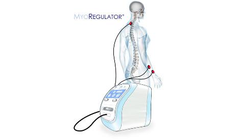 myoregulator