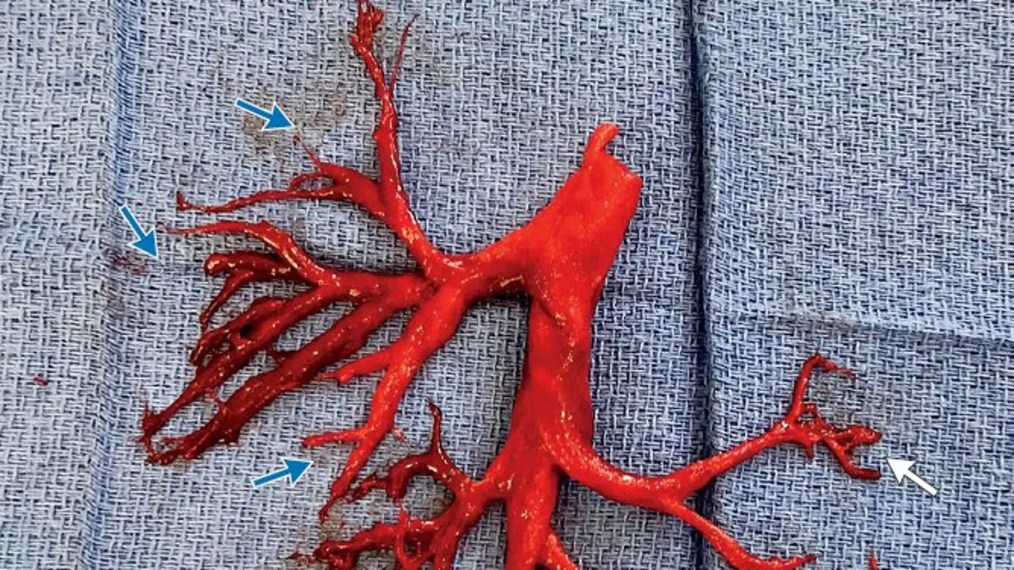 A man being treated for heart failure coughed out a cast of the right bronchial tree after doctors placed a ventricular assist device and began anticoagulation therapy.