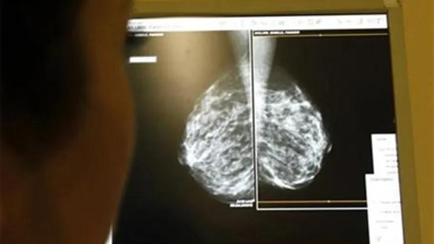 mammogram_monitor.jpg